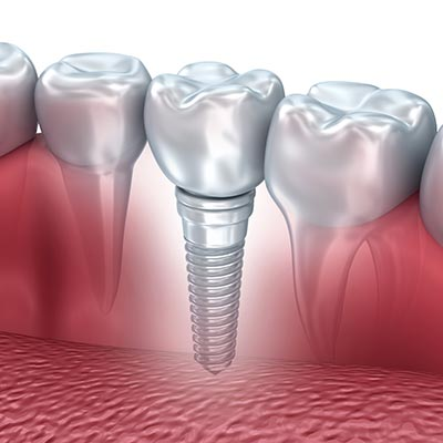 Illustration showing a dental implant installed in a model of a mouth.