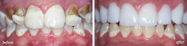 Pittston cosmetic dentistry procedure before and after for Dave