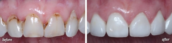 Pittston cosmetic dentistry procedure before and after for Giovanna
