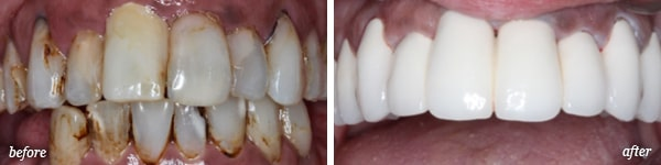 Pittston cosmetic dentistry procedure before and after for Kelly Ann