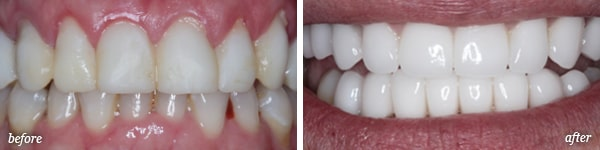 Pittston cosmetic dentistry procedure before and after for Michele