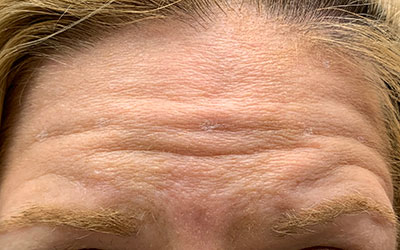 Before photo of the forehead of a Botox and dermal filler patient.