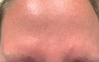After photo of the forehead of a Botox and dermal filler patient.