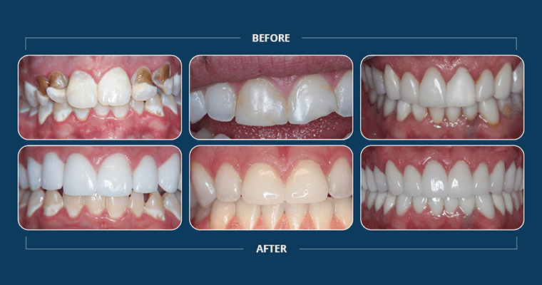3 before and after cosmetic dentistry cases showing to to fix your smile.