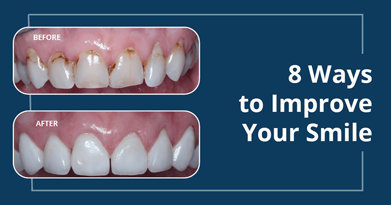 A before and after chipped tooth case with text about 8 ways to fix your smile.
